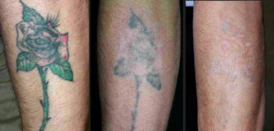 Tatuajes Borrados Por Laser alegna tattoo · tatuajes en córdoba - eliminacion tattoo